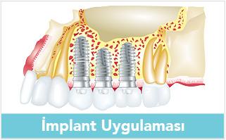 implant-uygulamasi-banner