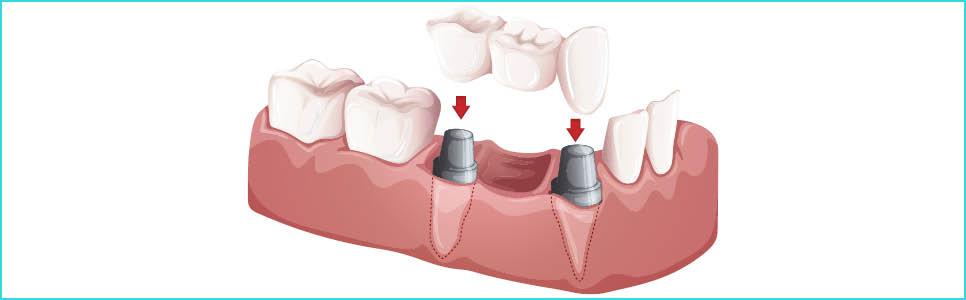 implant-uygulamasi