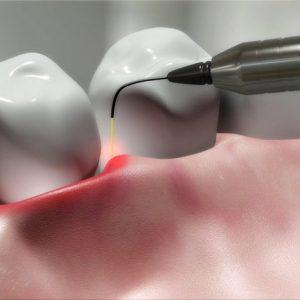 laser-dis-tedavisi
